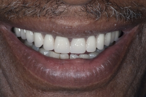 Lanett S Full Denture After 6215