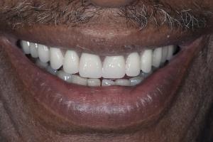 Lanett S Full Denture After 6215