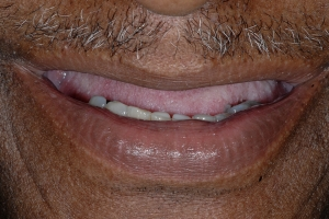 Lanett S Full Denture  Before 9643