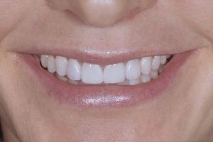 Laura S Grey Tooth Veneer After 9936