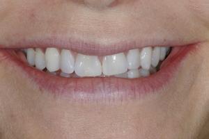 Laura S Grey Tooth Veneer  Before 9242