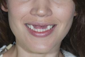 Laura Implant Temporary Temp1 0025