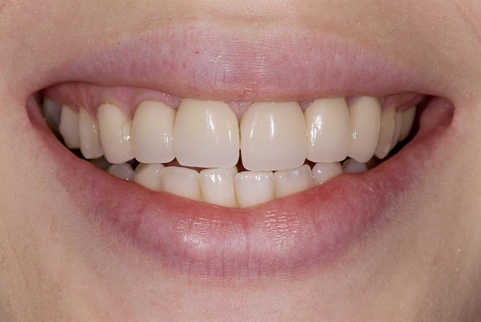 Dental Bridges Front Teeth All Options - Advanced Cosmetic