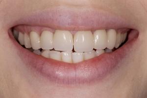 Laura Implant Bridge S B4 197