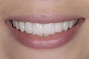 Laura-Implant-Bridge-S-Post-083