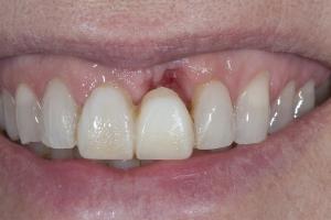 Laura Implant Bone Graft Bone S B4 2080