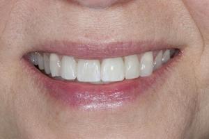 Laura Implant Bone Graft Bone S Post 4114
