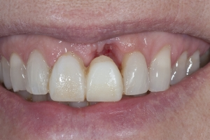 Laura Implant Crown S B4 2080