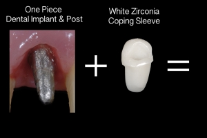 Laura Implant Crown X121 B3 2657 copy