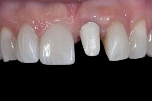 Laura Implant Crown X121 B4 3931