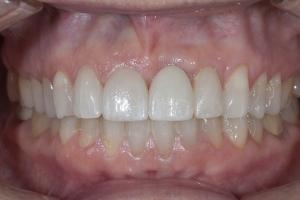 Laura Implant Crown X121R Post_4KL4115