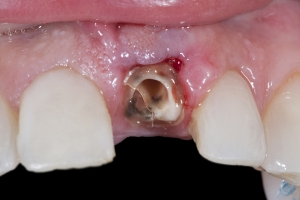 Laura Implant Crown X121 B3 1880