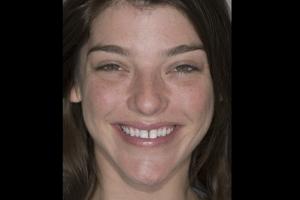 Lauren 2 F Diastema  Before 00372