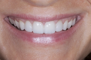 Leanne-Smile-Tune-Up-S-Post-1285