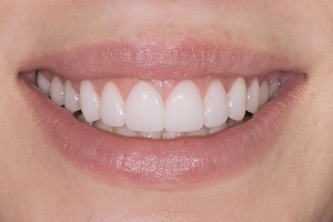 Lisa White Veneers S Post Cropped & Rotated 2
