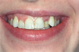 LisaLisa Implant Crown S B4002