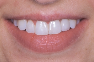 LisaLisa Implant Crown S Post J&M077 tiff
