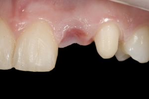 Lisa X121L1 Zirconium Bridge Before