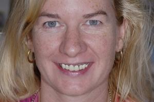 Lisa Receding Gums F2  Before 2198