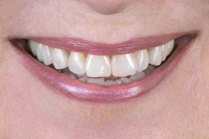 Lorna S Crowns Back Teeth After 6864