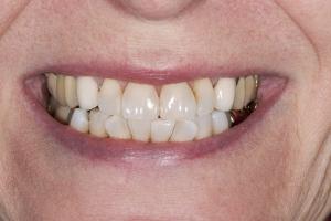 Lorna S Crowns Back Teeth  Before 3322 b