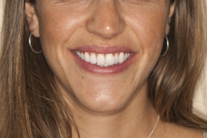 Lourdes F Invisalign  Before