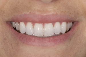 Lourdes S Invisalign After 0104