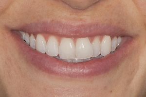 Lourdes S Invisalign  Before