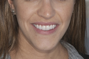 Lourdes F invisalign After
