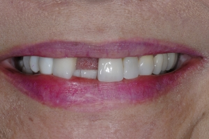 Maria Implant Crown S  Before 5621