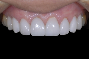Maria Teeth Whitening X121 After 1955 copy