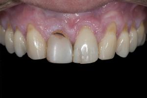Maria Teeth Whitening X121  Before 9789 copy