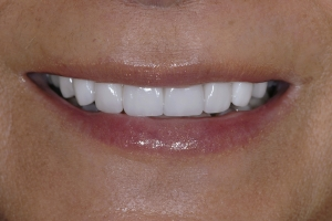 Maria Teeth Whitening S After 1859b