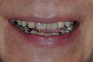 Maria Teeth Whitening S  Before 1132