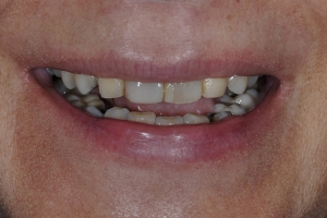Maria Teeth Whitening S  Before 1132