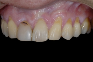 Maria Gum Graft X121c  Before 9788