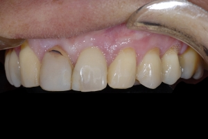 Maria Gum Graft X121d After 0188