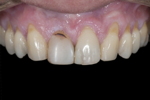 Maria Gum Graft Xx1 Before 9789