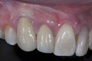 Mark Gum Graft Xx CTG  1 4029 copy