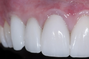 Mark Gum Graft Xx CTG  1 5180