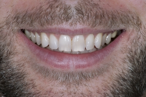 Mark S Crown Back Teeth After 5817