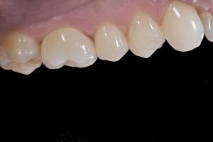 Mark X121 Crown Back Teeth After 5829
