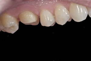 Mark X121 Crown Back Teeth  Before 5822