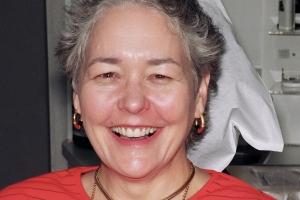 Martha F Grey Tooth Crown After copy