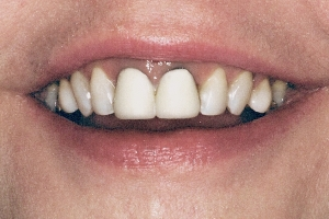 Martha S Grey Tooth Crown  Before