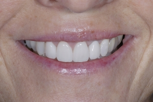 Mary S Grey Tooth Crown Post 5506