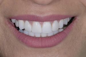 Mary Surgically Facilitated Braces S Post 9757 2