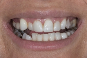 Mary Surgically Facilitated Braces S B4 _4KL8705