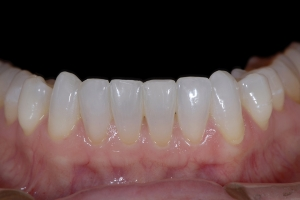 Mary Teeth Whitening Z121L After 3729