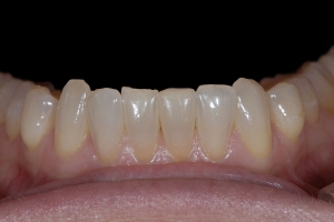 Mary Teeth Whitening Z121L  before 9589